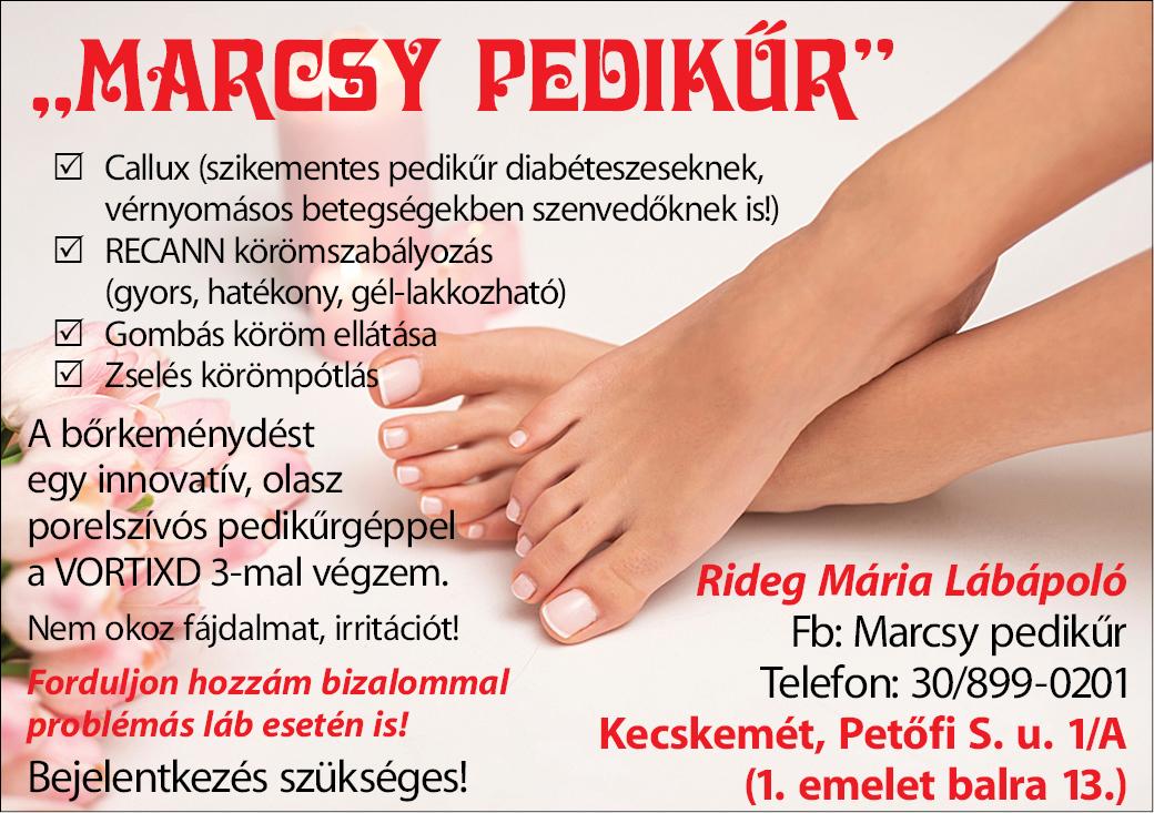 Marcsy Pedikűr